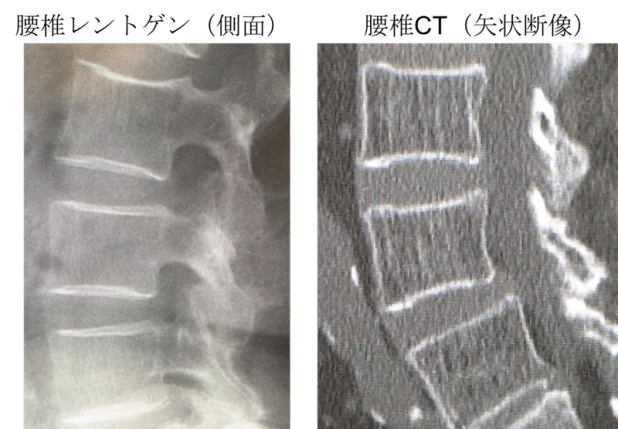osteoporosis Xray and CT findings1