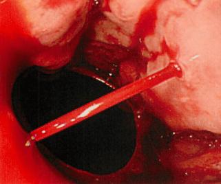 varix rupture