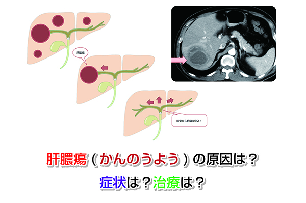 Cause of liver abscess Eye-catching image