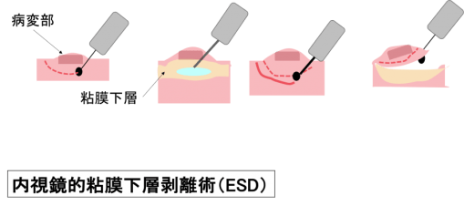 Endocscopic Submucosal Dissection