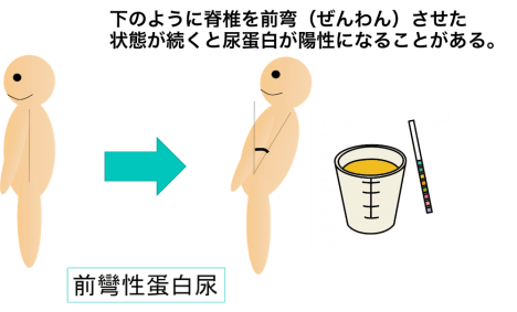 lordotic proteinuria figure
