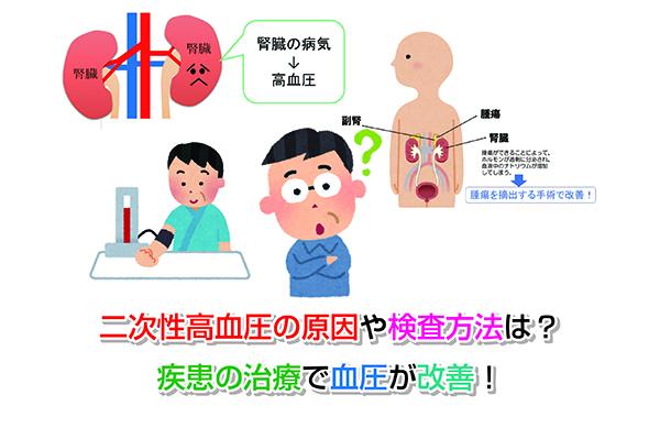 Secondary hypertension Eye-catching image