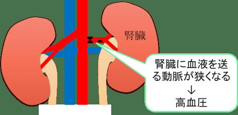 renovascular hypertension figure