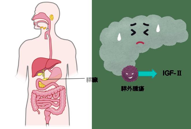 膵外腫瘍がIGF-Ⅱを産生