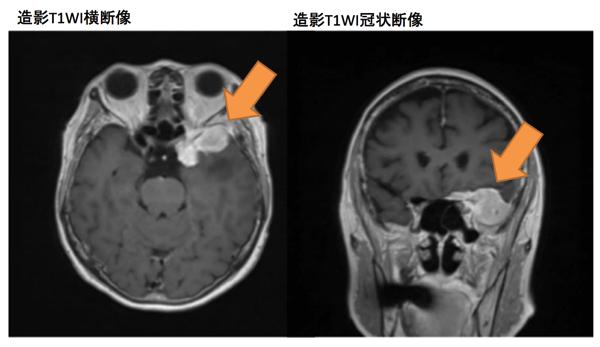 meningioma001