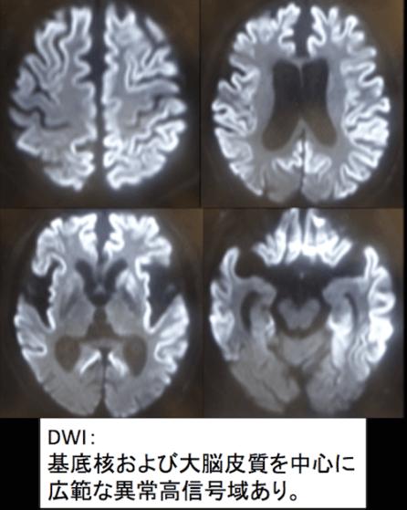 cjd MRI doc1