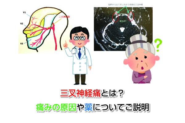 Trigeminal neuralgia Eye-catching image