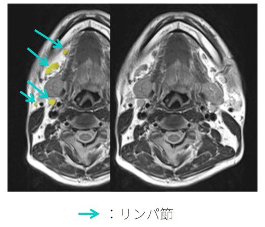 cervical-lympho-swelling-anatomy1
