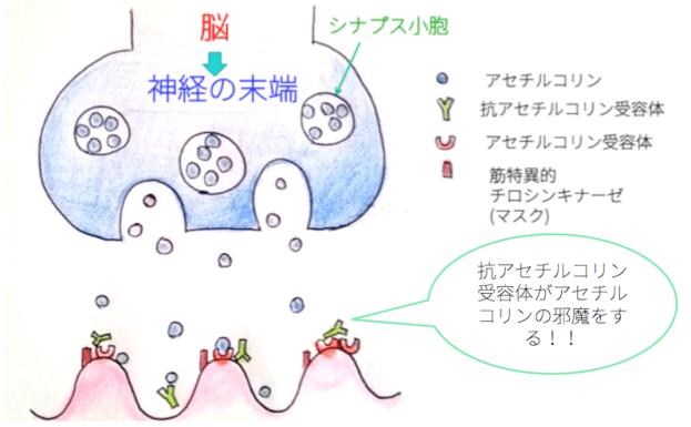 doc2-myasthenia-gravis-11