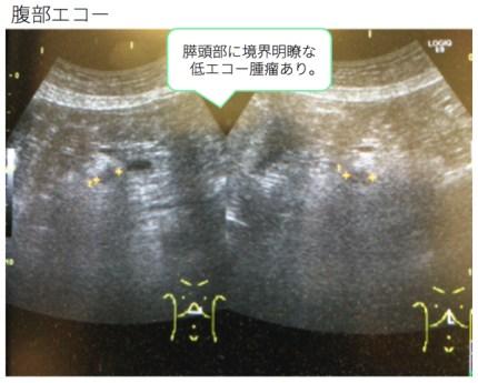 pancreas-net2 doc1