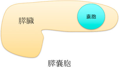 pancreatic cyst figure