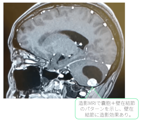 pilocystic-astrocytoma-mri-t1wi-gd doc2