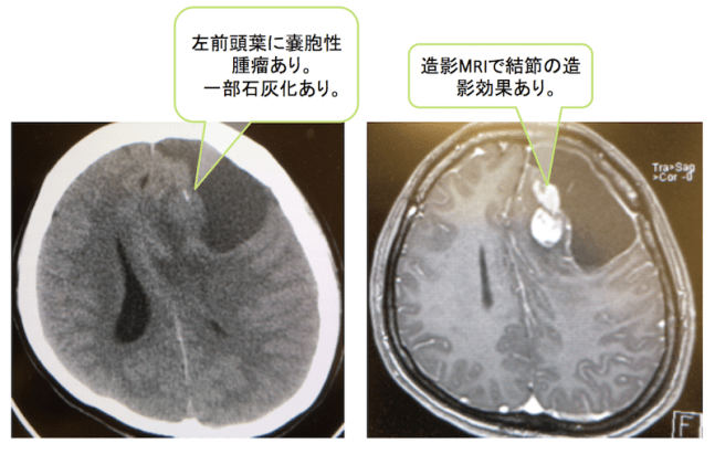 anaplastic-oligodendroglioma