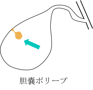 gallbladder polyp figure