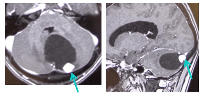 hemangioblastoma2