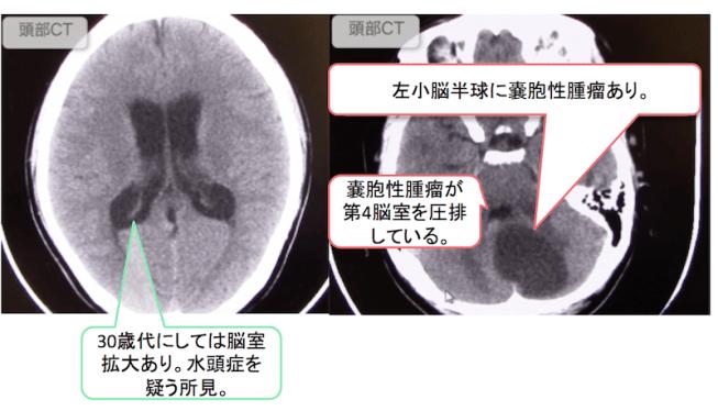 hemangioblastoma3