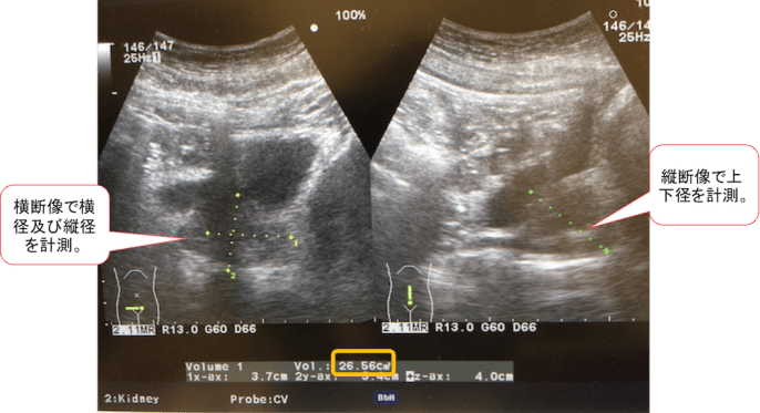 prostate echo findings1