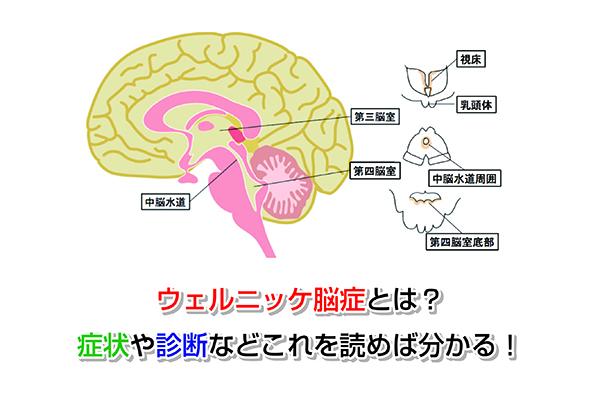 脳症 ウェルニッケ