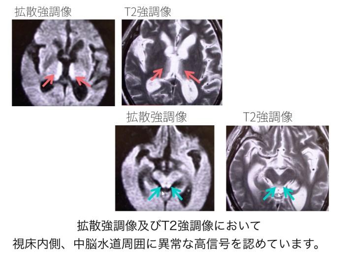 wernickes-encephalopathy-001 doc2