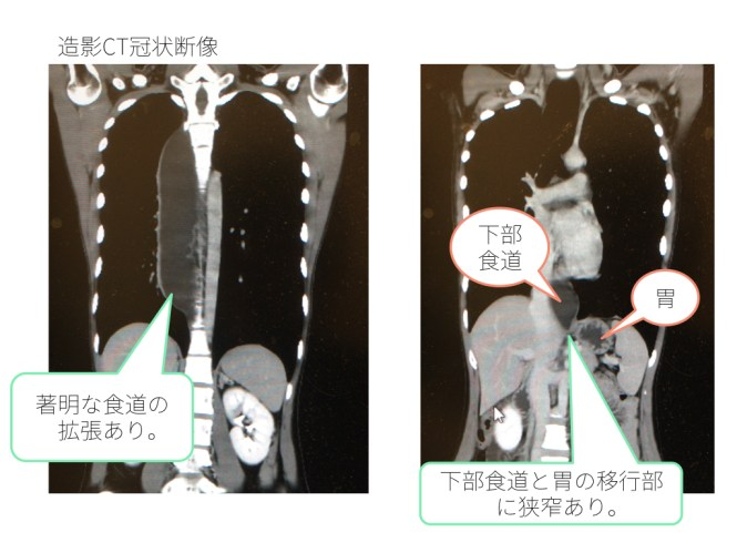esophageal-achalasia1-doc2