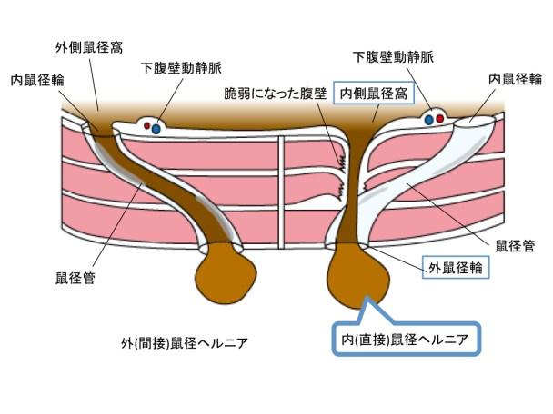 external-herniation-figure-ct-findings-001