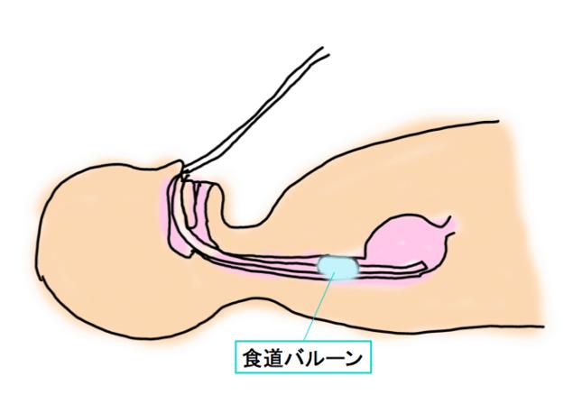 sb-tube-1