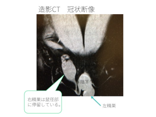 undescended-testicle-002