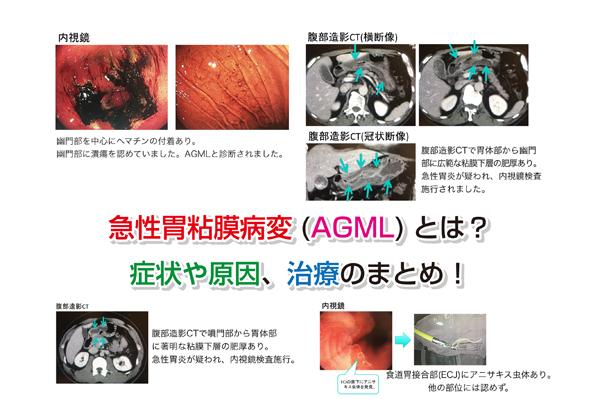 AGML Eye-catching image