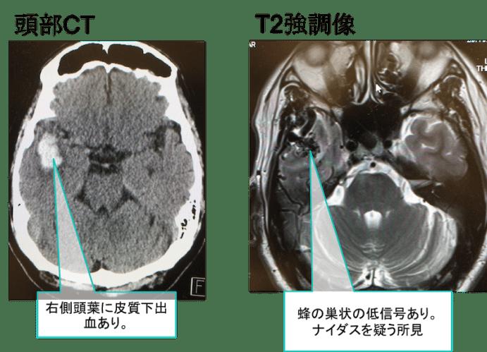 cerebral arteriovenousmalformation mri findings2