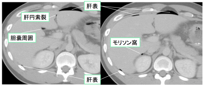 intestinal-perforation1-001 doc2