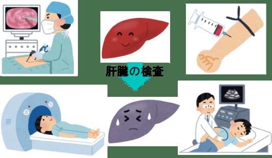 liver check