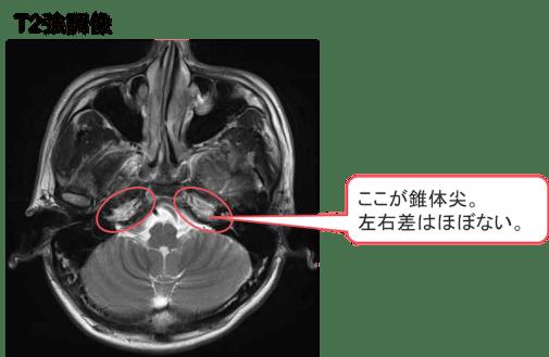 petrous pyramid MRI findings