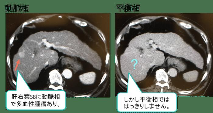 HCC CT findings2