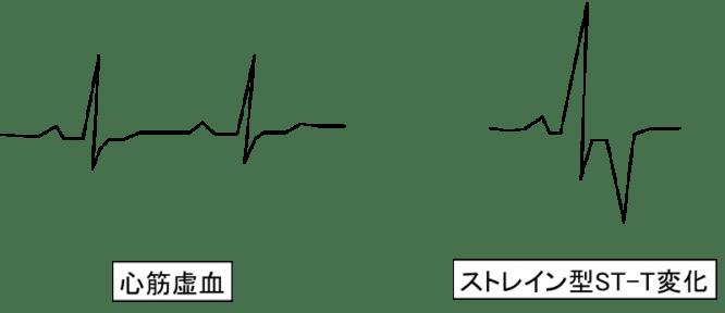 electro-cardiogram