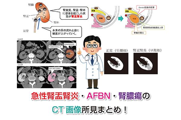Acute pyelonephritis Eye-catching image