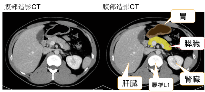 ct findings of pancreas
