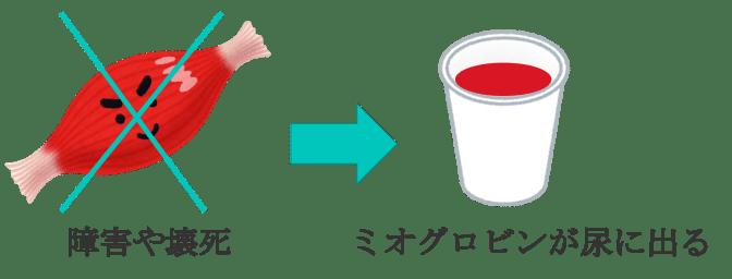 urine myoglobin1