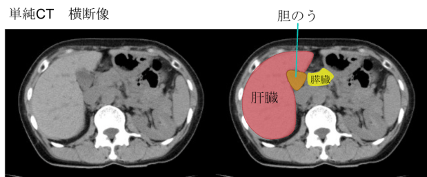 location of gallbladder CT findings1
