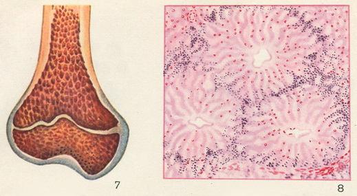 Злокачественная анемия прогноз