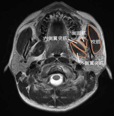 咀嚼筋のMRI画像における解剖・場所