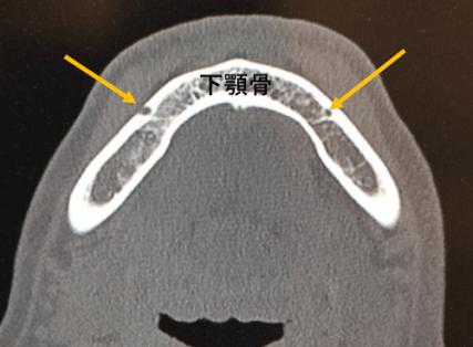 オトガイ孔のCT画像