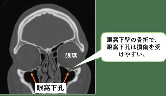 眼窩下孔の冠状断像のCT画像
