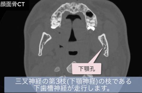 下顎孔のCT画像