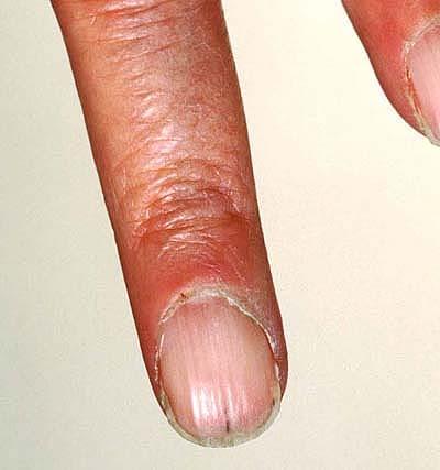 Verticle Ridges On Fingernails 73
