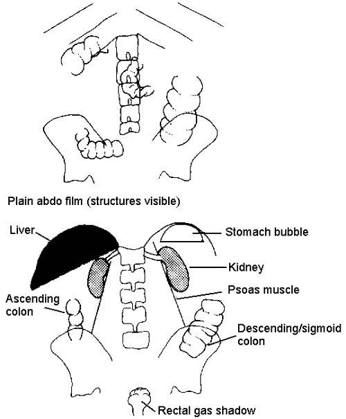 Plain Abdominal X-ray. Read about Plain Abdominal X-rays
