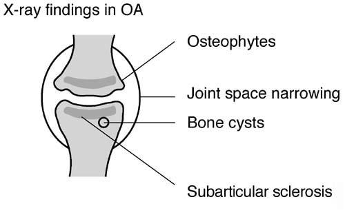 Osteoarthritis. Arthritis (in Knee, Neck, Spine, Hands