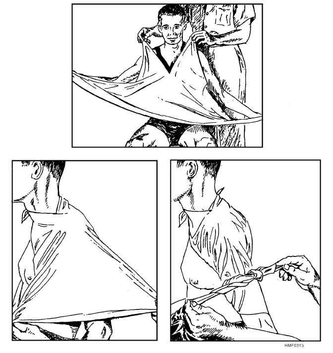 Figure 313.Triangular bandage for the shoulder.