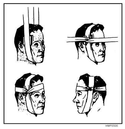 Figure 319.Cravat bandage for the eye.