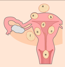 Uterine fibroid- An example of benign anaplasia