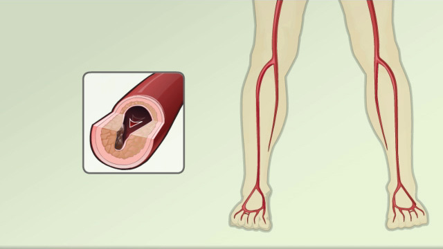 FEMORAL POPLITEAL BYPASS SURGERY - Best Medical Care ...